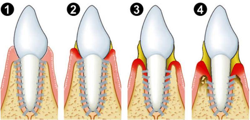 lechenie-parodontoza